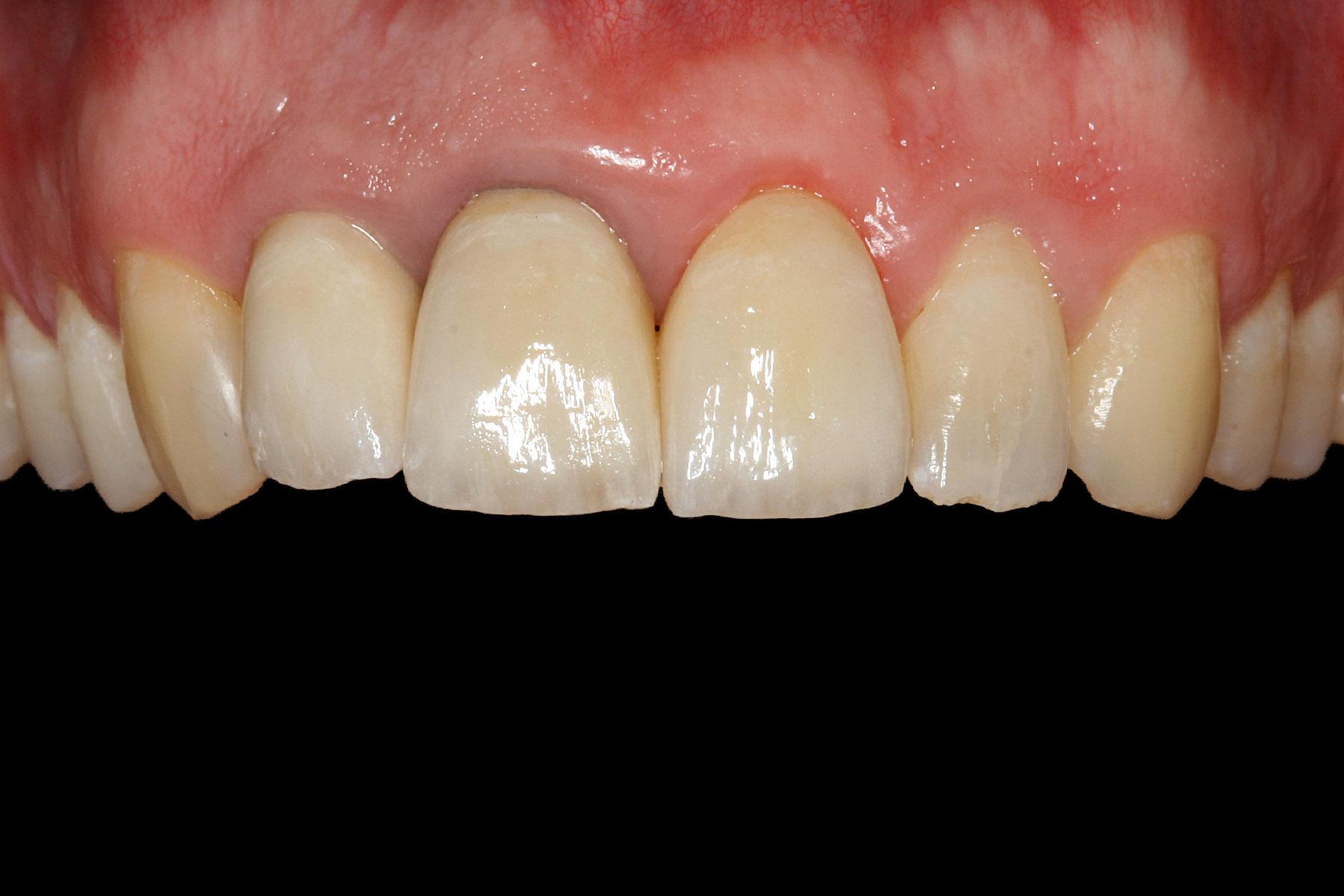 After-Zahnfleischbehandlung