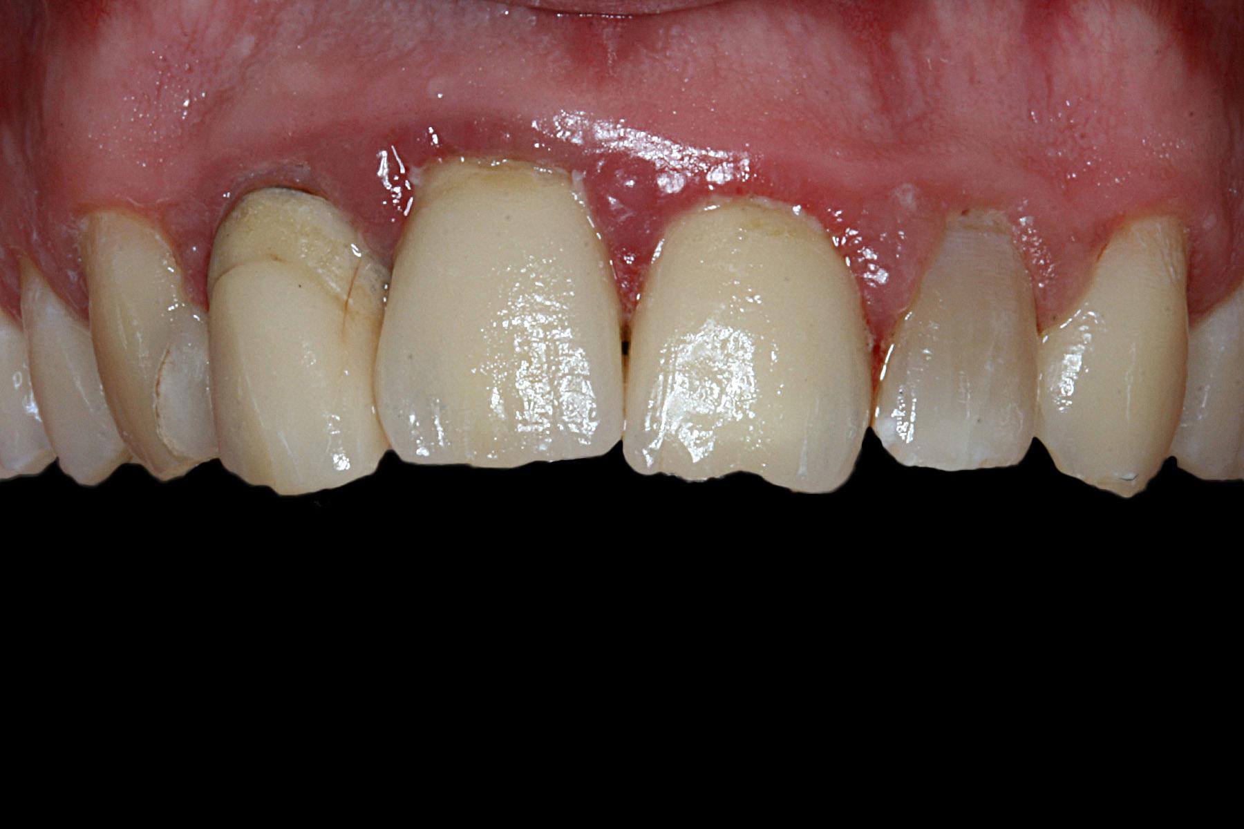 Before-Zahnfleischbehandlung