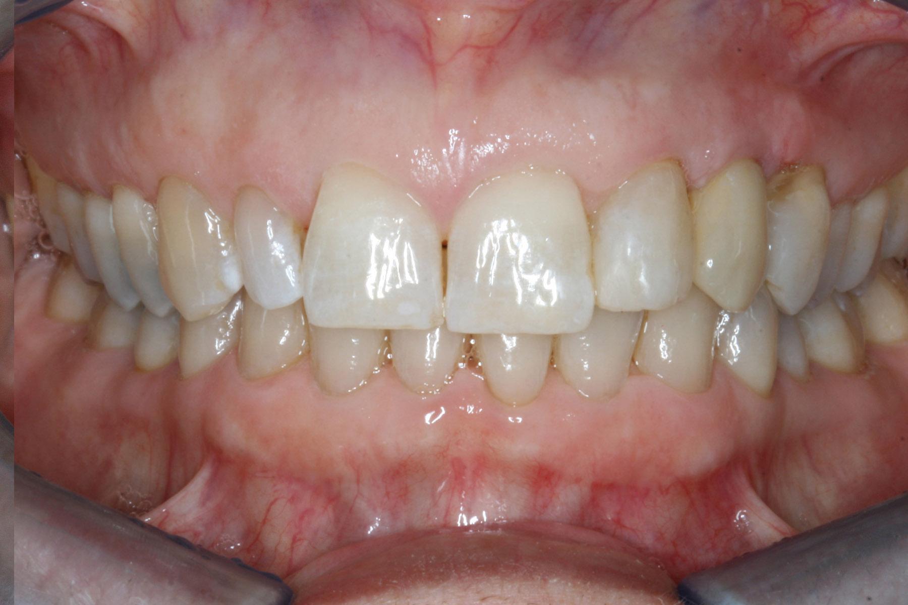 After-Implantat