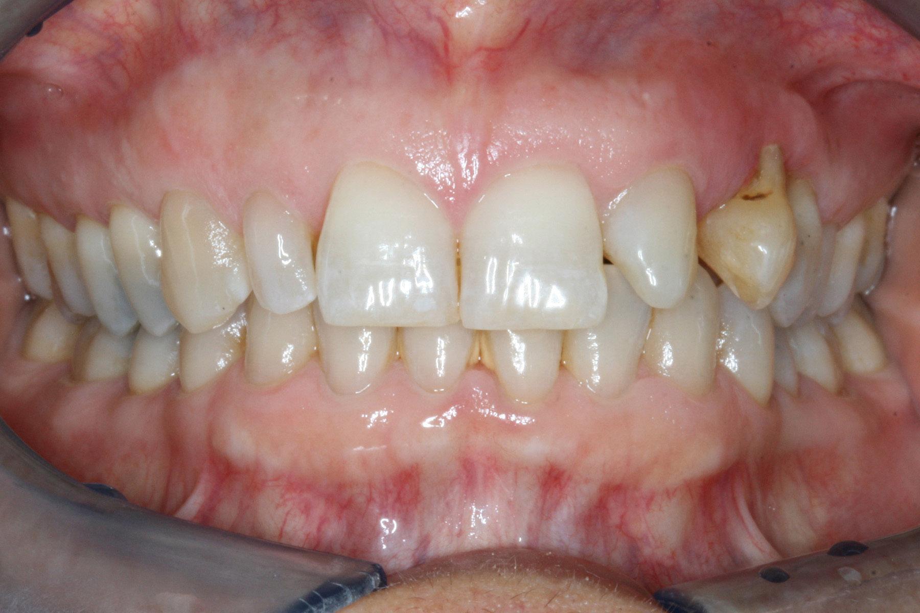 Before-Implantat